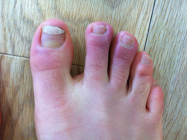Picture of chilblains